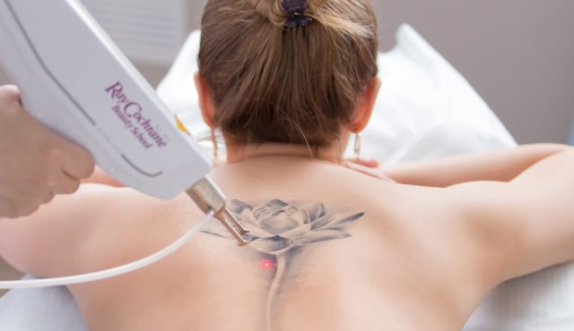 Level 5 Laser Tattoo Removal Training Course